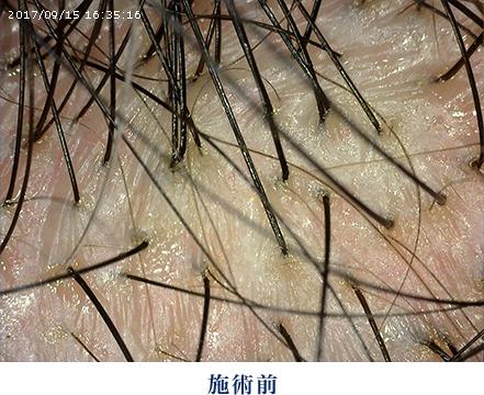 乾燥 頭皮 の